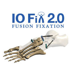 io-fix-2prod