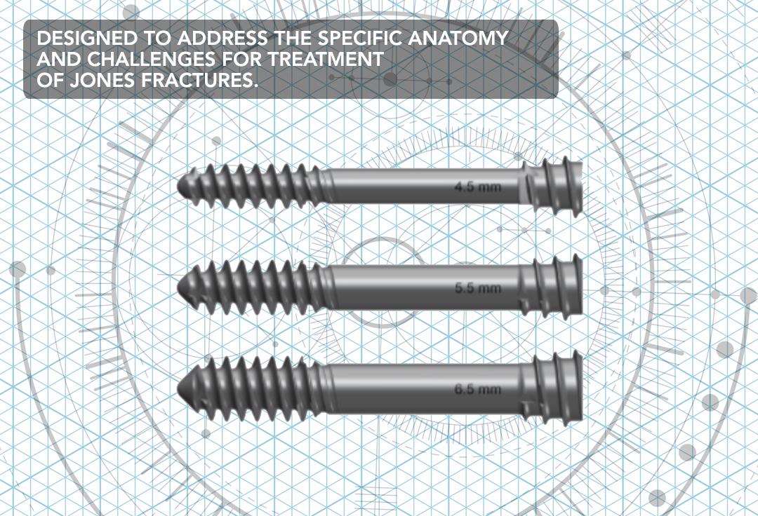 Jones Fracture System