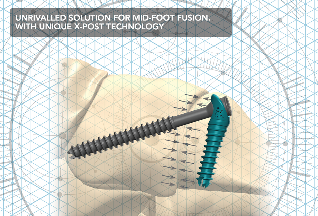 IO FiX 2.0 Unrivaled Solution for Mid-foot Fusion with unique x-post technology