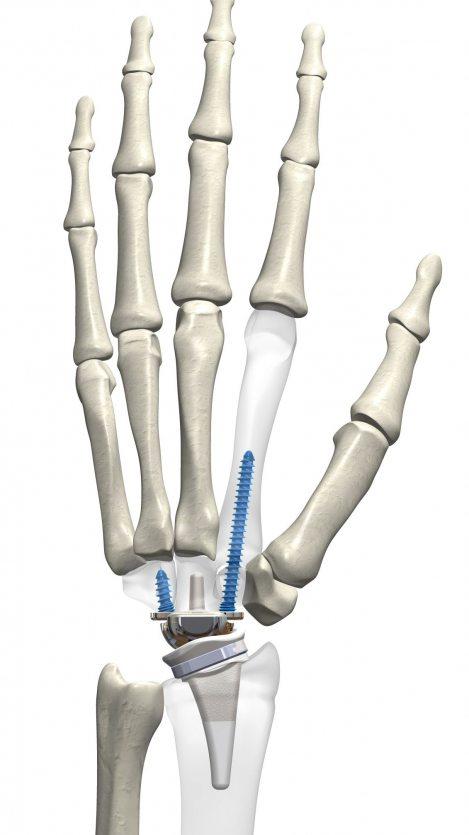 kinematx-hand